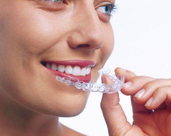 Ідеальні зуби: як зміцнити, випрямити і відбілити
